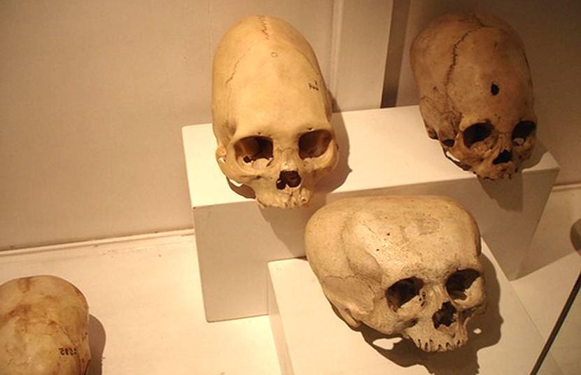deformación craneal de los mayas